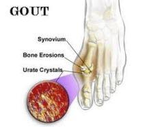 pengobatan penyakit asam urat